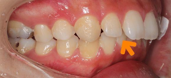 前歯を引っ込める治療