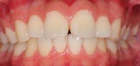 前歯のスペースの症例