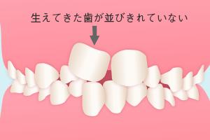 生えてきた前歯が大きく並びきらない