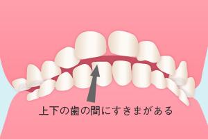 上下の歯が噛み合っておらず、すきまがある