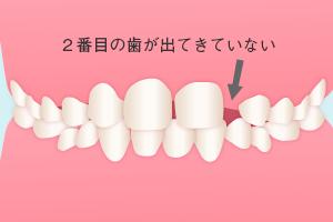 左上の2番目の歯が出てきていない
