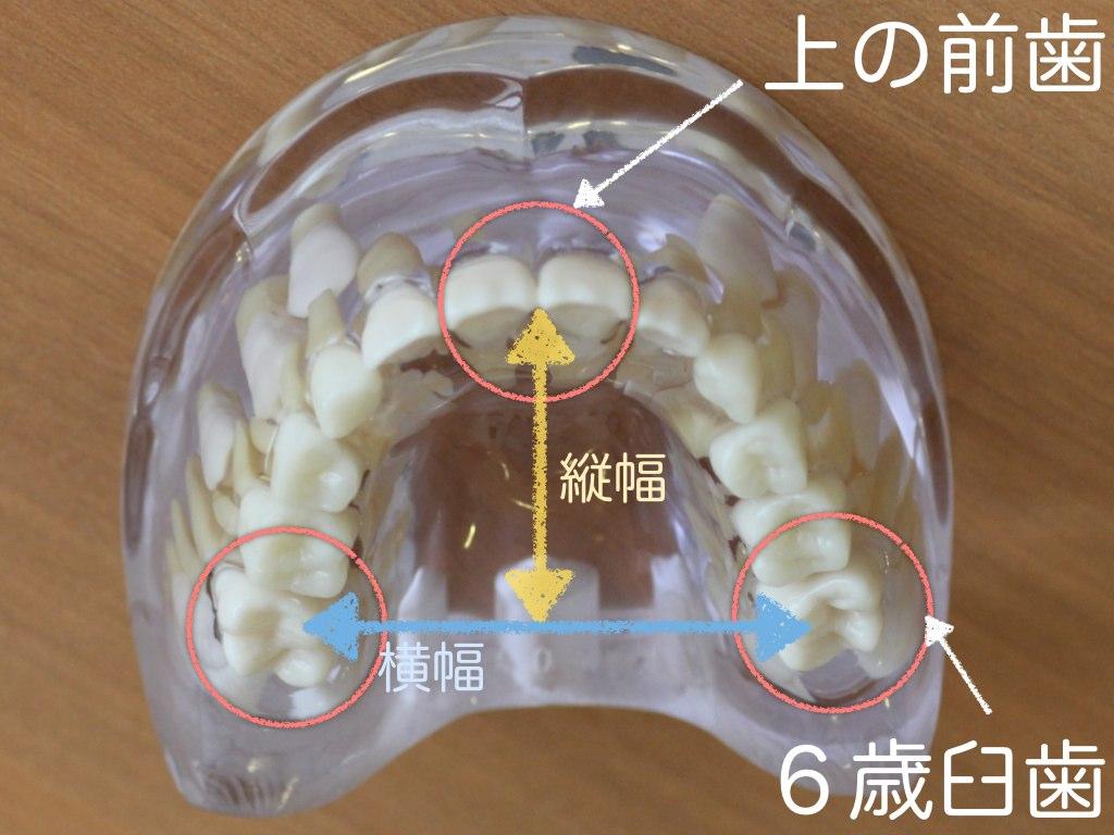 混合歯列期前期は色々と歯並びがわかる