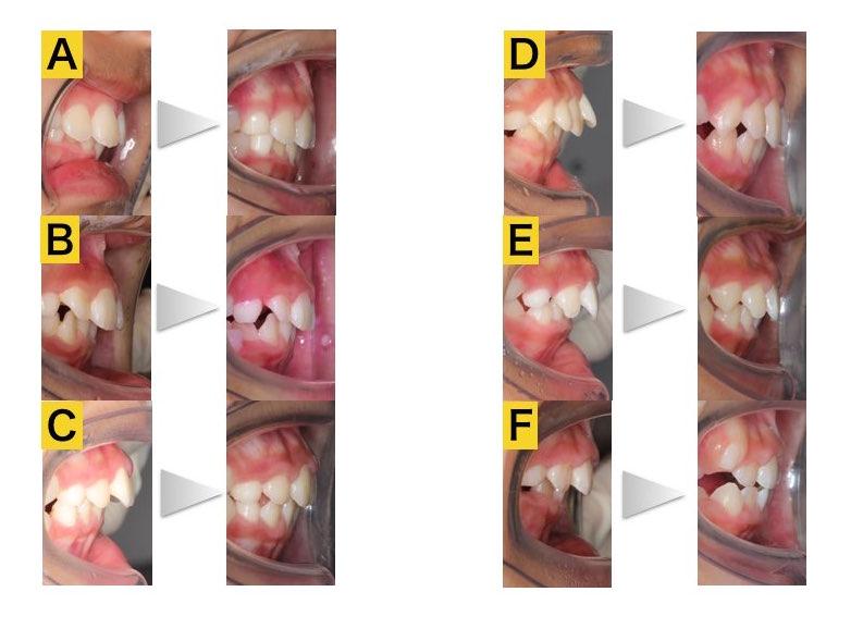 プレオルソ・上顎前突・症例