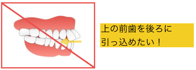 部分矯正で前歯を引っ込めたい