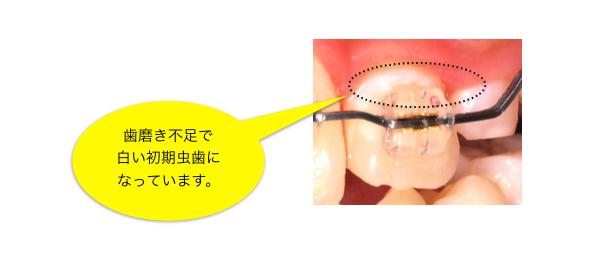ブラケットカリエス・矯正・虫歯