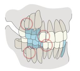 <先天性欠如歯が出やすい部分>
