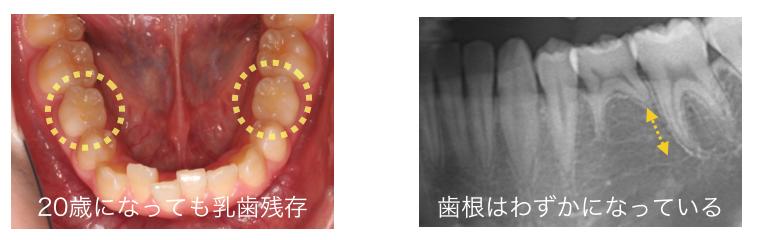 乳歯 歯根吸収