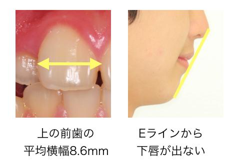 非抜歯矯正の判断基準