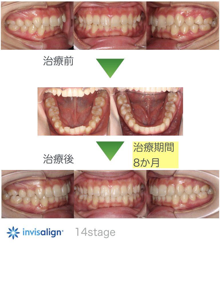 前歯の歯並びが悪い・叢生・インビザラインライト・20代女性