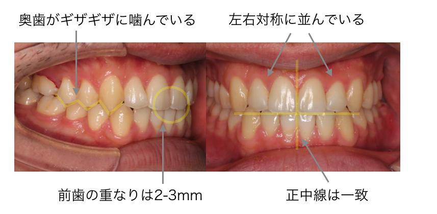 治療後の噛み合わせの確認の説明