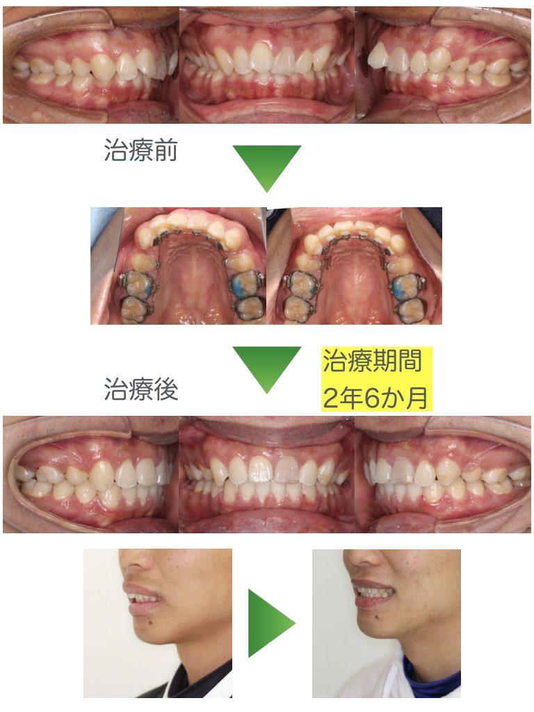 前歯の歯並びが悪い・過蓋咬合・抜歯・裏側矯正・高校生