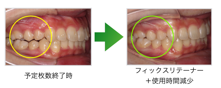 インビザライン矯正治療後の臼歯部オープンバイト