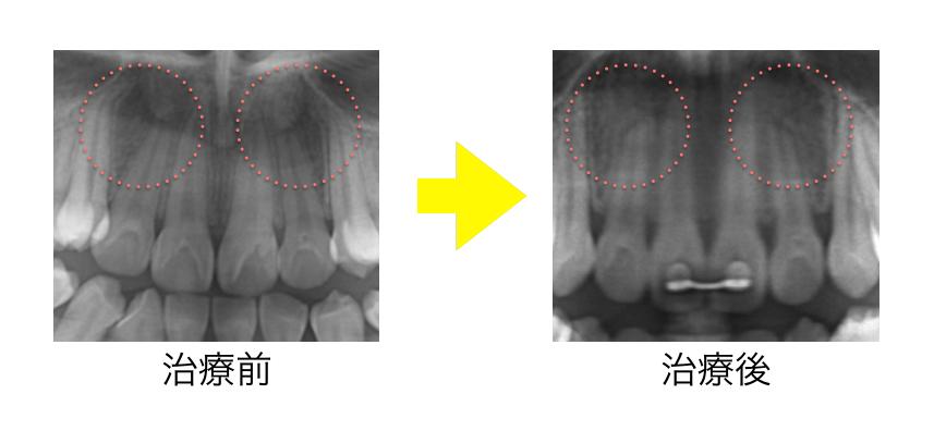 矯正歯科治療・治療後・歯根吸収・レントゲン