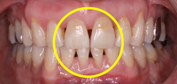 ブラックトライアングル 矯正歯科治療