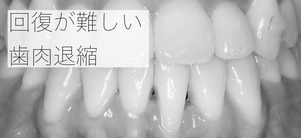 回復の難しい歯肉退縮