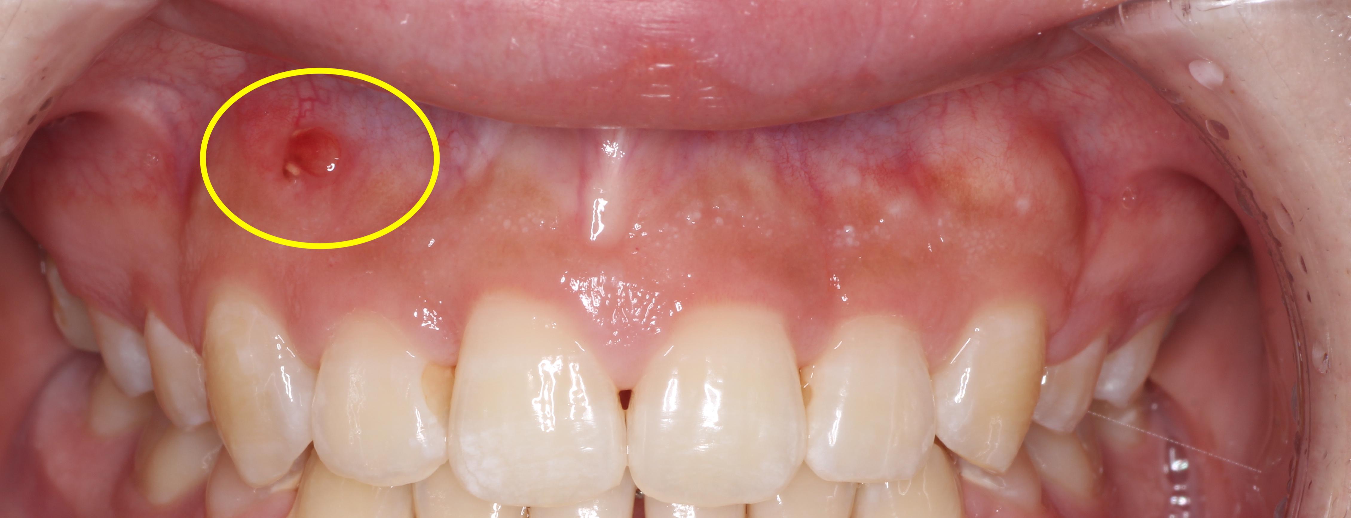 歯髄壊死・歯根囊胞