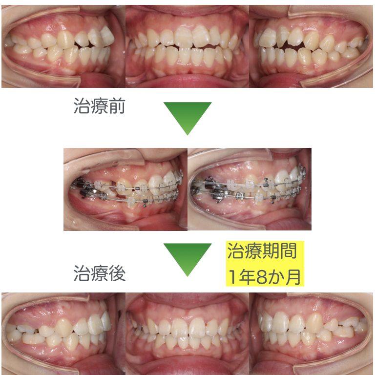 開咬・抜歯症例3