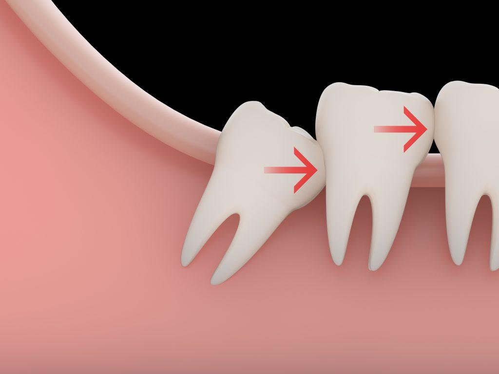 親知らずが前歯を押して歯ならびが悪くなる
