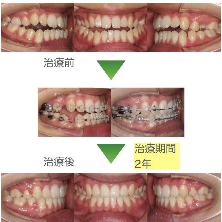 開咬・抜歯矯正2