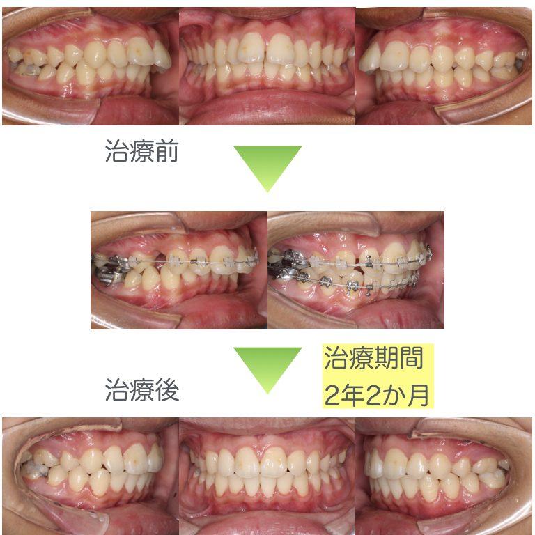 出っ歯・表側矯正治療