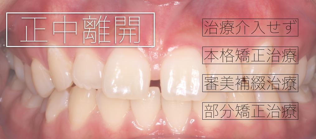 正中離開・すきっ歯の治療計画