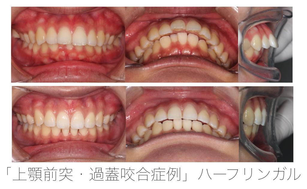 ハーフリンガル 上顎前突と過蓋咬合の併発