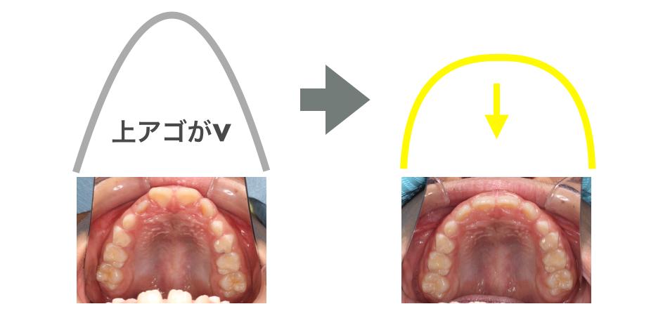 上顎がV字歯列 プレオルソで改善