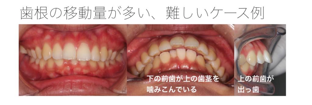 上顎前突・過蓋咬合 治療期間がかかる難しいケース