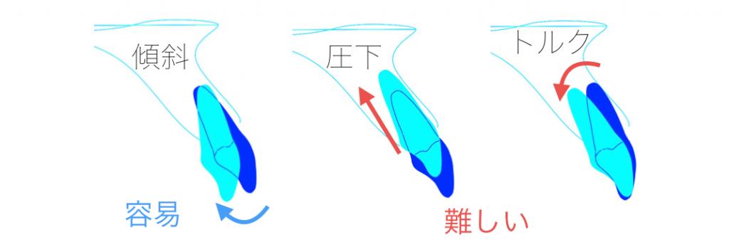 歯の移動様式