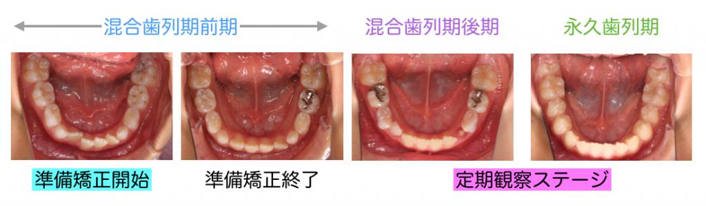 混合歯列期後期 矯正歯科治療
