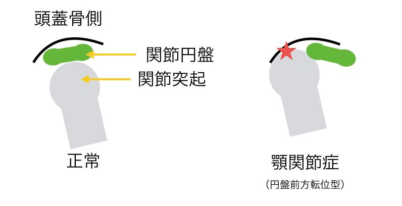 III型顎関節症の状態図