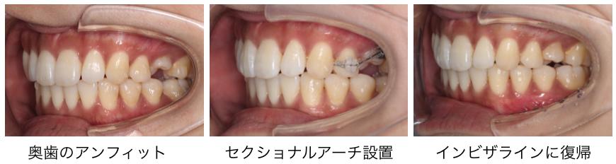 <小臼歯の捻れが取りきれずアンフィットになった際のリカバリー>