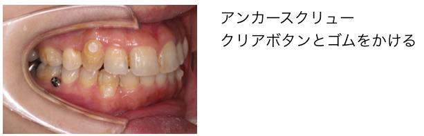 <奥歯の歯茎にあるボタンがアンカースクリュー>