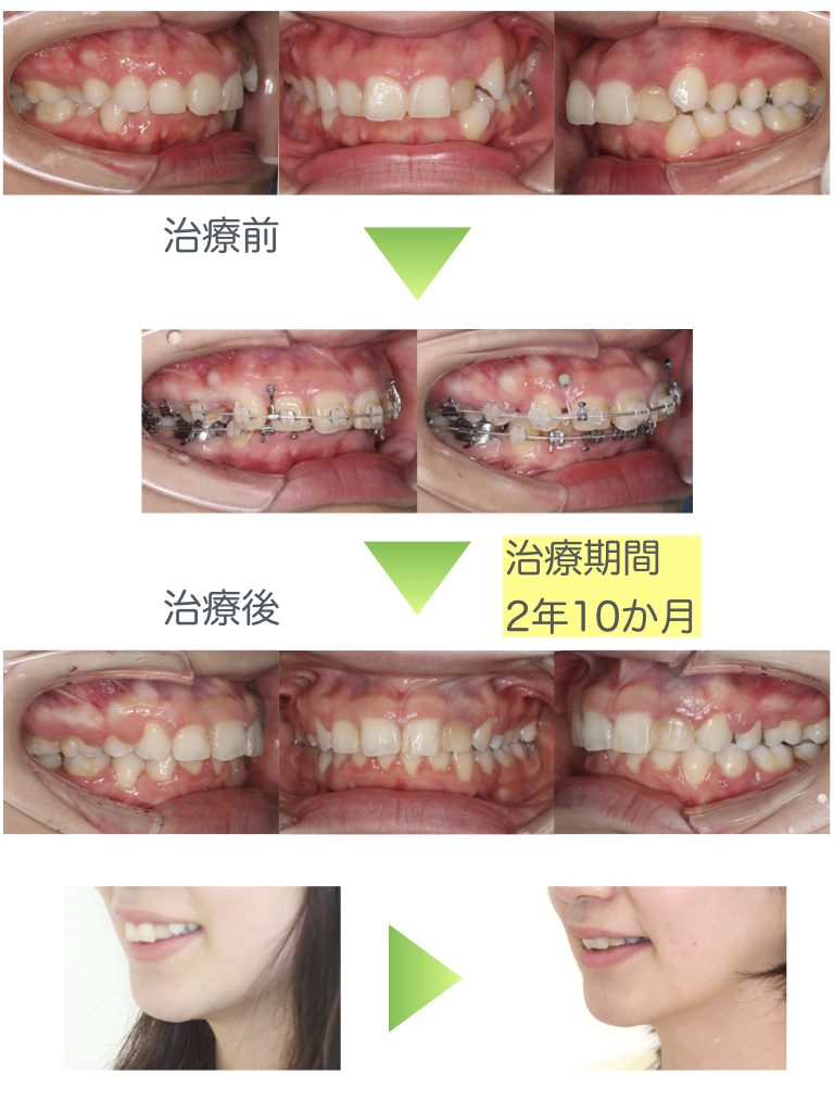 Deep bite, Gummy smile, Anchor screw, Extraction, Adult, brackets