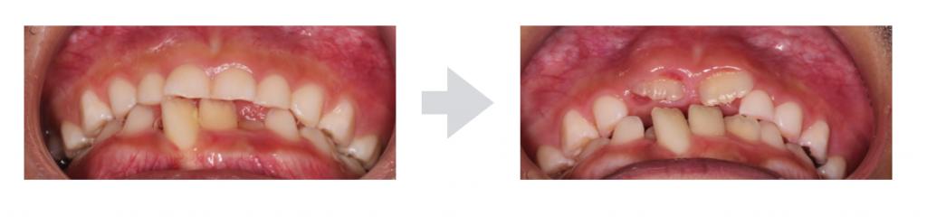乳歯より永久歯が大きい