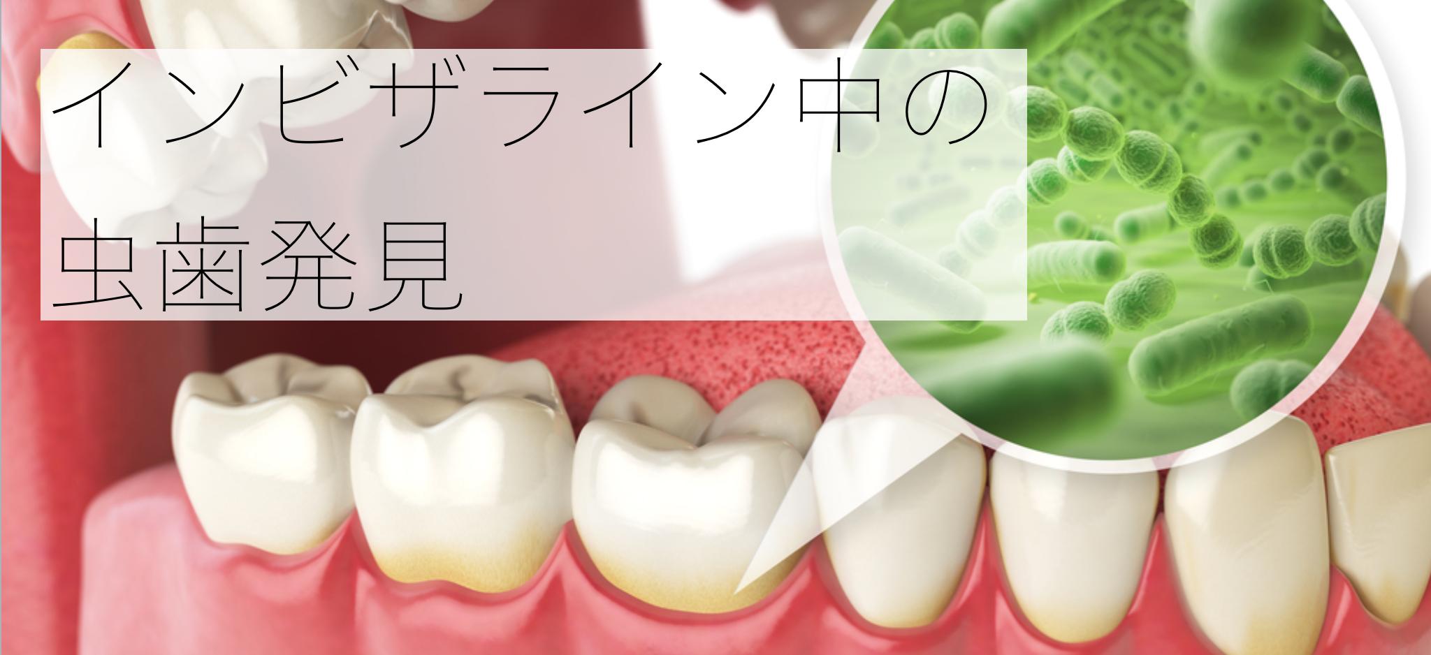 インビザライン  虫歯