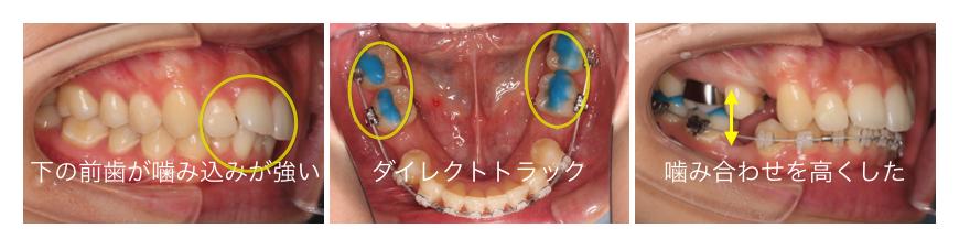 <青い突起にて奥歯が高くなり、下の前歯に矯正装置を装着する事が可能になります>