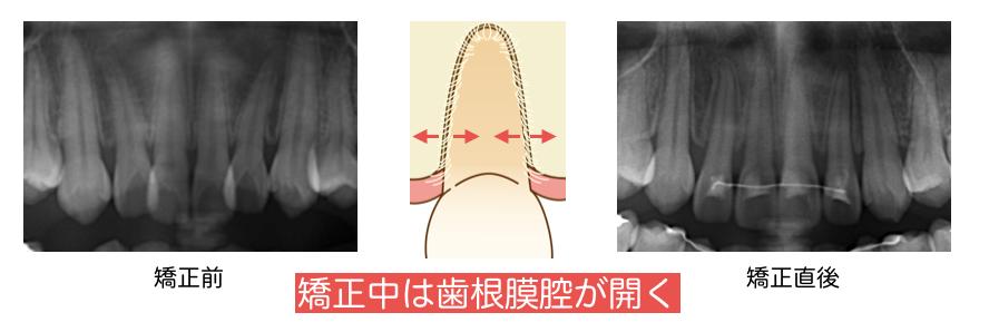 矯正中・歯根膜・開く