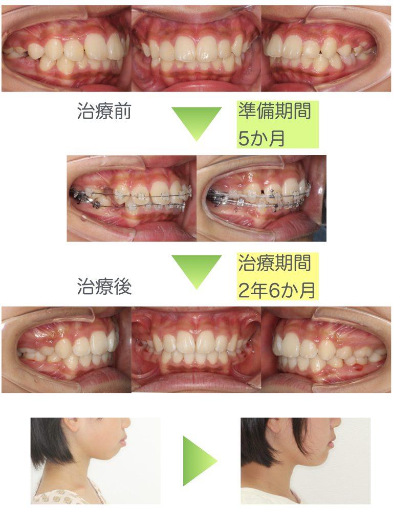 上下顎前突・表側矯正治療