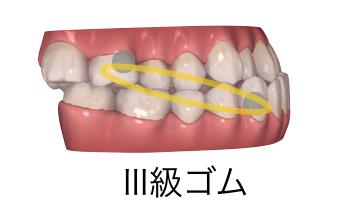 III級顎間ゴム