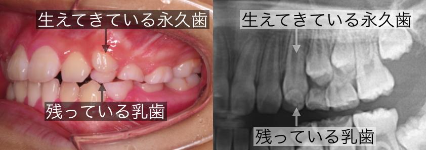 <乳歯の永久歯への生え変わり>
