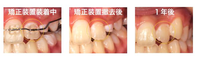 ワイヤー装置装着後にできた白い初期虫歯