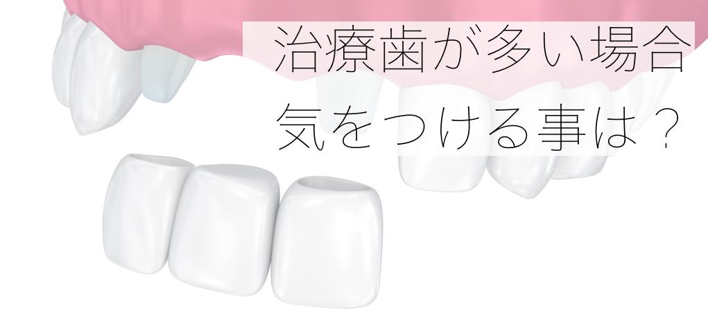 治療歯が多い場合の矯正治療