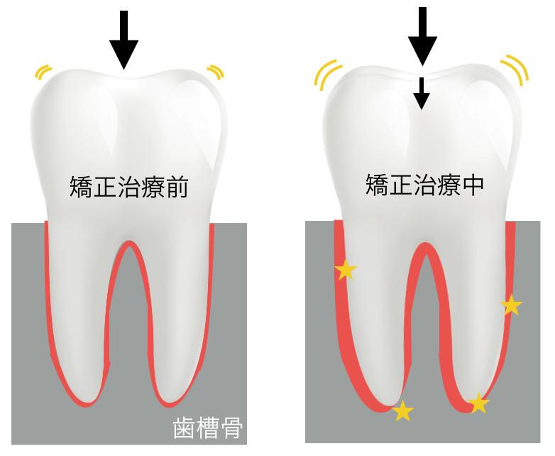矯正治療開始直後は歯根膜が痛い