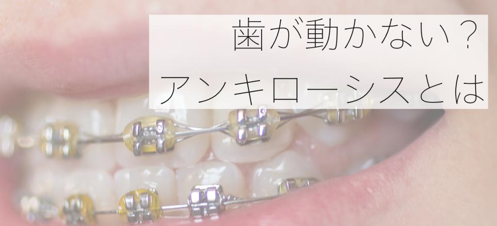 歯が動かないアンキローシス