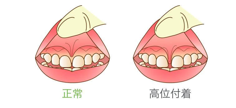 上唇小帯 位置