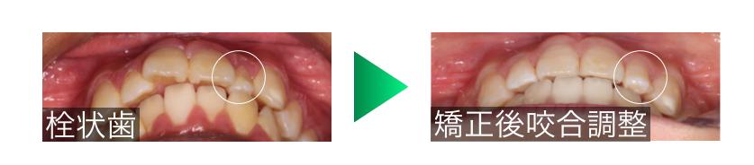 栓状歯の矯正