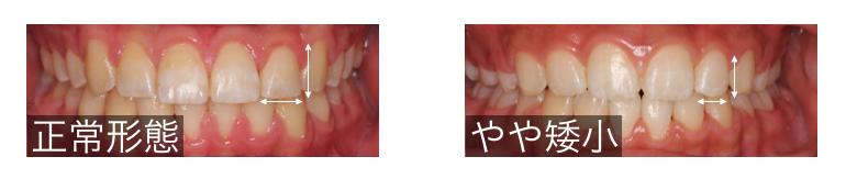 矮小歯の形