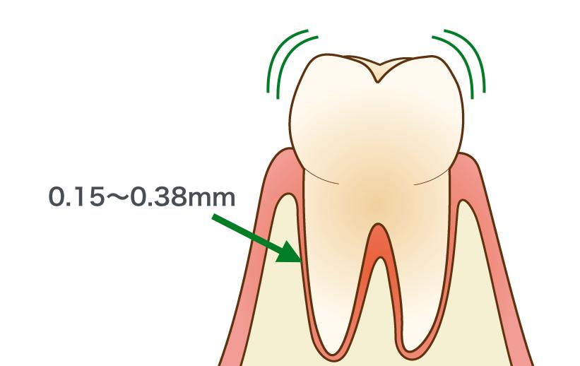 歯根膜があるので動揺する