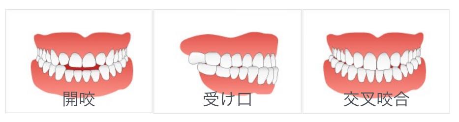 くいしばり・バランスの悪い歯並び